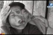 आर्थिक स्थिति कमजोर भएकाहरु रोग पालेर बस्न बाध्य
